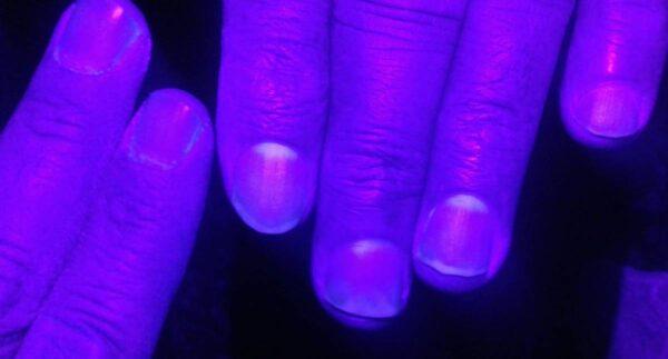 Favipiravir kullananların tırnakları mor ışıkta parlıyor
